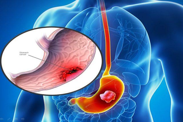 Ung thư dạ dày là bệnh lý vô cùng nguy hiểm