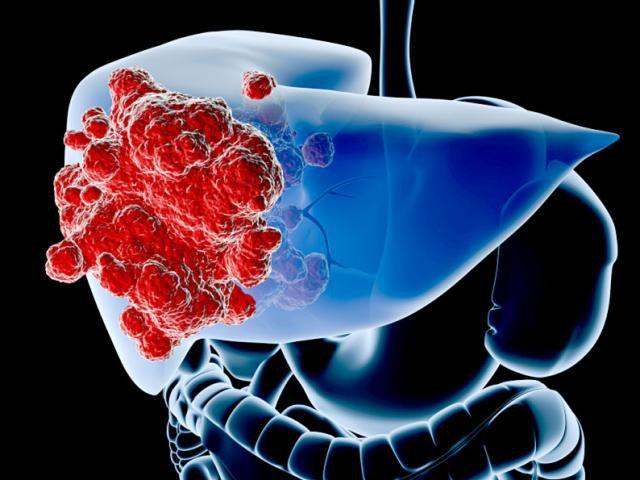Ung thư gan là một trong 5 loại ung thư gây tử vong hàng đầu