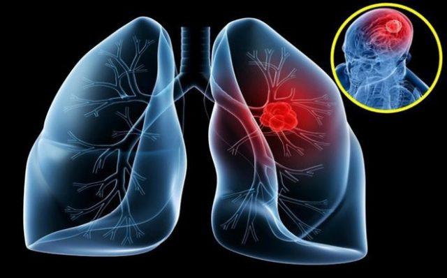 Ung thư phổi là loại ung thư thường gặp ở cả nam và nữ.