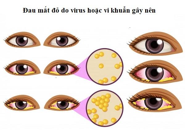 Đau mắt đỏ có thể do virus hoặc vi khuẩn gây ra.