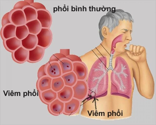 Viêm phổi là một biến chứng do sốt virus