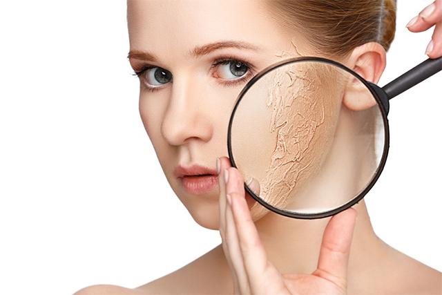 Nguyên nhân và cách khắc phục tình trạng da khô vào mùa lạnh